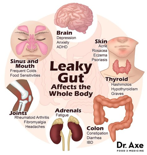 11 leaky gut
